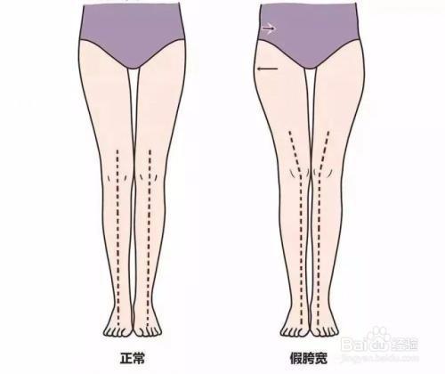大腿前面的肉突出来怎么减肥