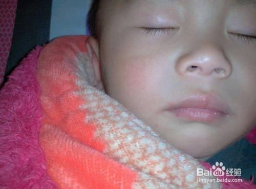 新生儿脸上长红点图片图片