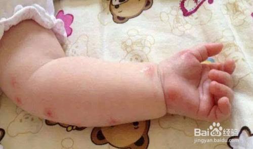 蚊子咬了怎么消肿止痒最快用什么药图片