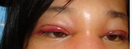 做双眼皮后注意事项 做双眼皮后应该注...