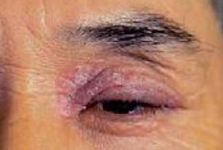 眼皮过敏痒起皮怎么办?这几天有点肿?