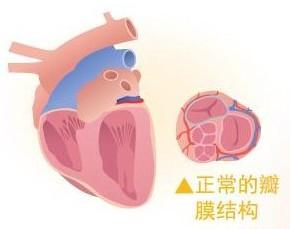 养宠必看:如何预防宠物心脏病及注意事项有哪些?