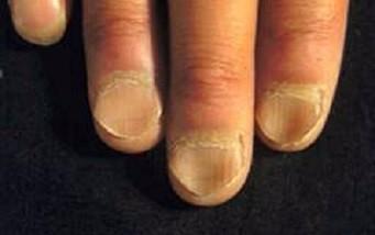手指甲凹凸不平是什么原因