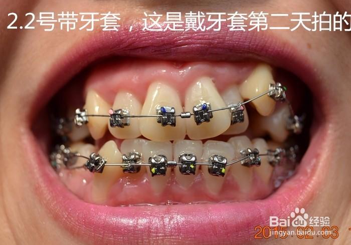 牙齿矫正中,带牙套一年的变化对比图